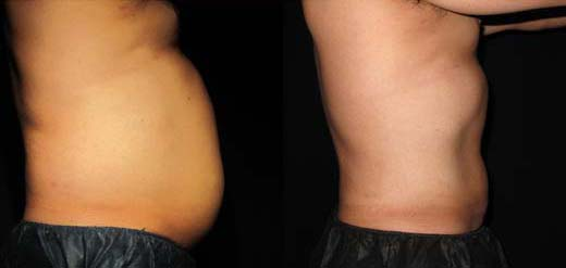 smartlipo before and after harrisburg pa