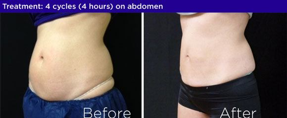 coolsculpting before and after harrisburg pa