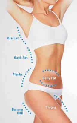 coolsculpting newtown bucks county