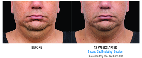 men double chin coolsculpting before and after