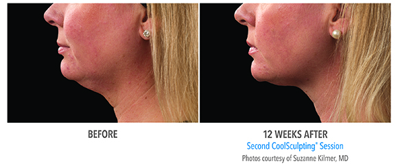 double chin coolsculpting before and after