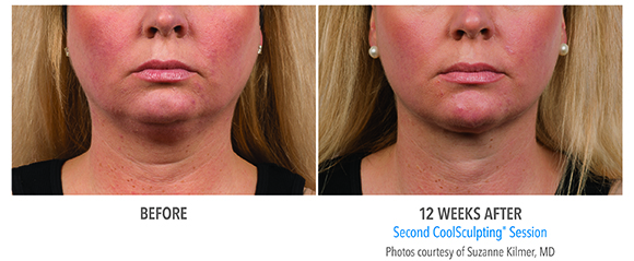 before and after double chin coolsculpting