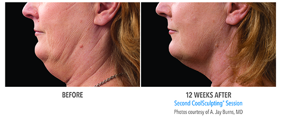 double chin coolsculpting woman before and after
