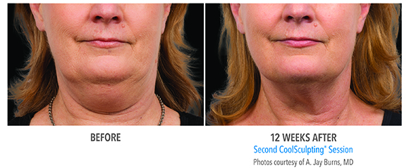 before and after double chin coolsculpting for woman