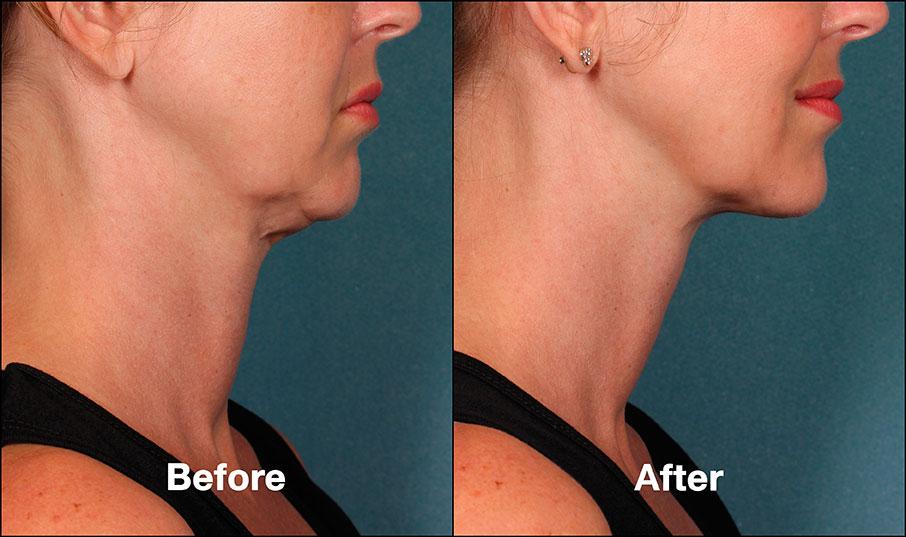 kybella before and after philadelphia Bella Medspa