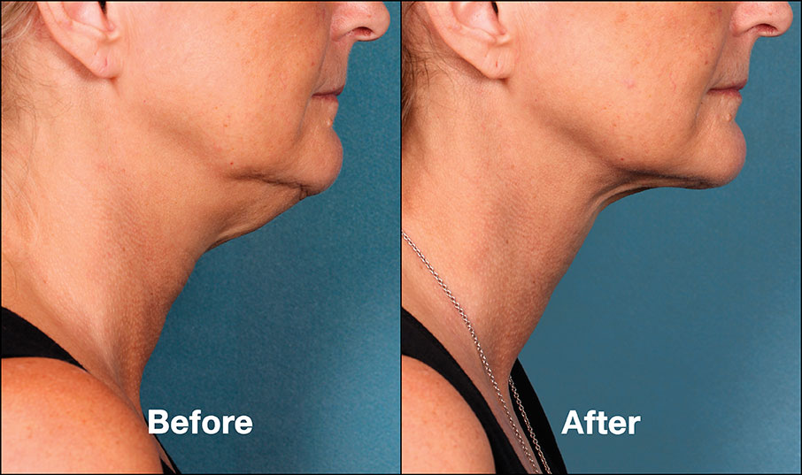 kybella before and after philadelphia Bella Medspa
