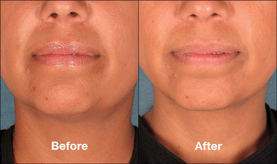 Kybella Before And After Pictures Bella Medspa