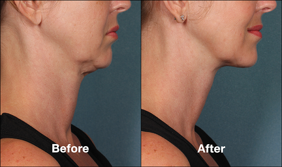 Kybella Injections 6 Locations Throughout Pa