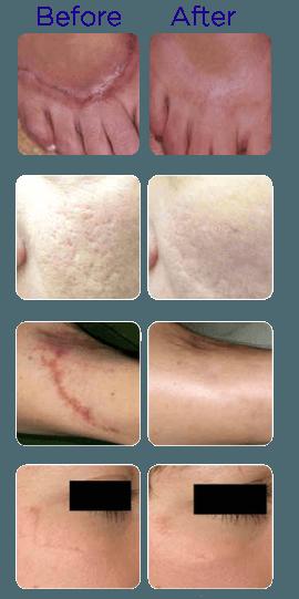 Laser Scar Removal, Surgical Scars Removal | Philadelphia PA